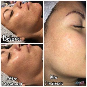 Laser Hair Removal and Microneedling Before and After Yuma