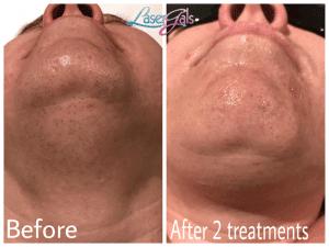 laser-hair-removal-chin-laser-gals-yuma
