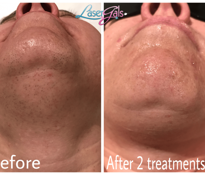 Laser Hair Removal - Yuma,AZ 85365 - Laser Gals Skin Studio