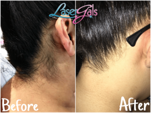 laser-hair-removal-neck-hair-hairline-yuma