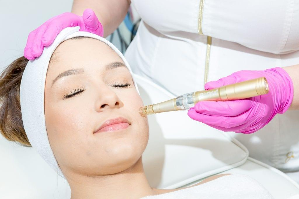 Microneedling Yuma, Yuma microneedling, Laser Gals, Collagen Induction Therapy, Yuma Arizona, scar revision, acne scarring, skin treatment, hyperpigmentation, sun damage, wrinkles, anti-aging. microneedling